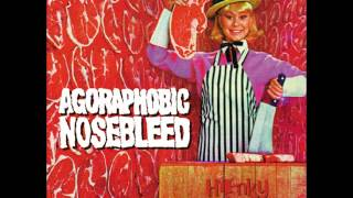 Watch Agoraphobic Nosebleed Die And Get The Fuck Out Of The Way video