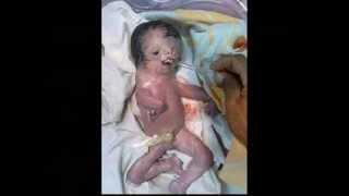 Part 1 Hesham Tillawi Depleted Uranium in Iraq Ten years after the War still causes deformed births