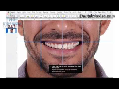 Download Lagu DSD - Digital Smile Design by Felipe Miguel MP3 Free
