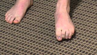 Toe & Arch Strengthening Exercise Demonstration