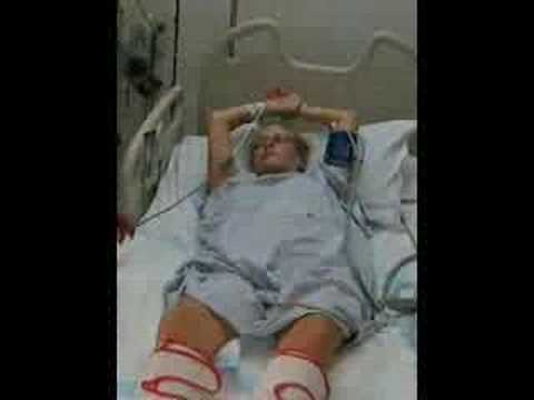 guillain barre syndrome steroid treatment
