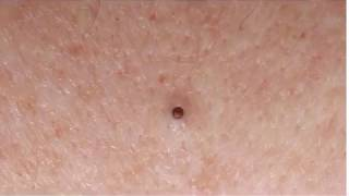 Dilated Pore of Winer? Giant Open Pore!