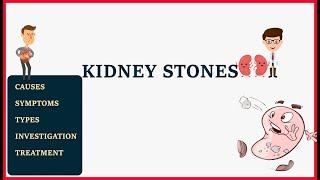 Kidney stone | causes | types | symptoms | treatment