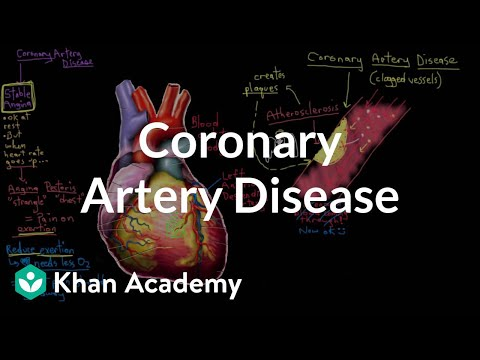 What is coronary artery disease? | Circulatory System and Disease | NCLEX-RN | Khan Academy thumbnail
