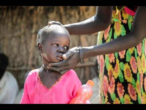 War and Hunger Drive South Sudan Displacement