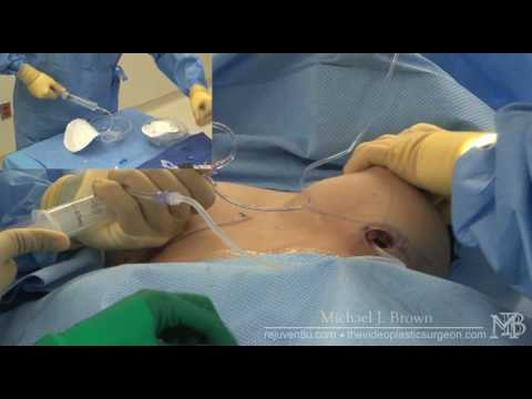Breast Augmentation using saline filled breast implants