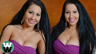 15 Most Unusual Twins You Won't Believe Exist