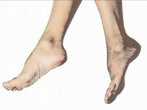 Top Exercises For Varicose Veins
