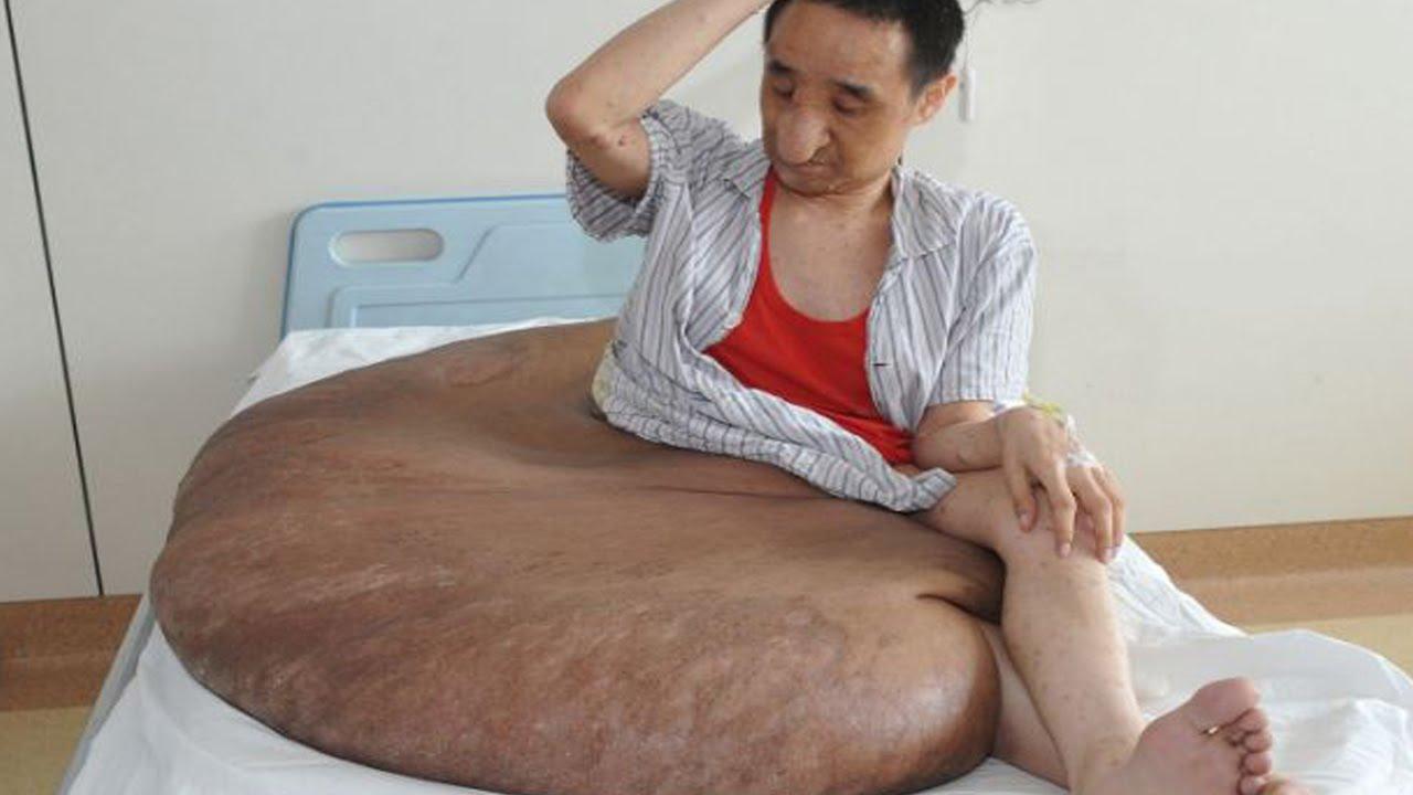 Самая большая залупа в мире, Самый большой член в мире -видео. Смотреть 4 фотография