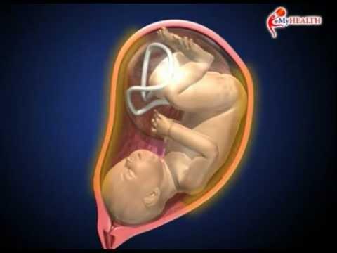 MyHEALTH : Proses Kelahiran Bayi