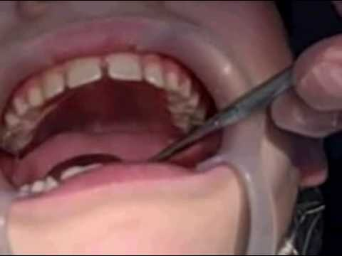 Getting My Braces! Stage 1 The Palate Expander