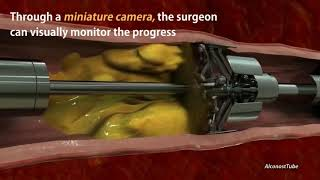 New technology that removes the clog in your arteries