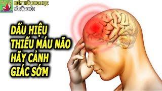 Thiếu máu não nguyên nhân dấu hiệu và cách phòng ngừa hiệu quả