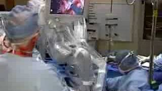 Robotic-Assisted Minimally Invasive Hysterectomy