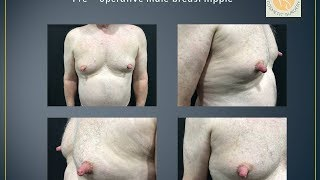 Male nipple reduction performed by Dr Shailesh Vadodaria