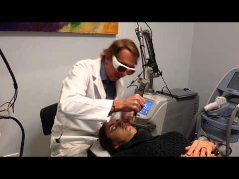 Spectra (Carbon) Laser Acne Peel, Treats and Prevents Acne Dr Weiner Destin Florida