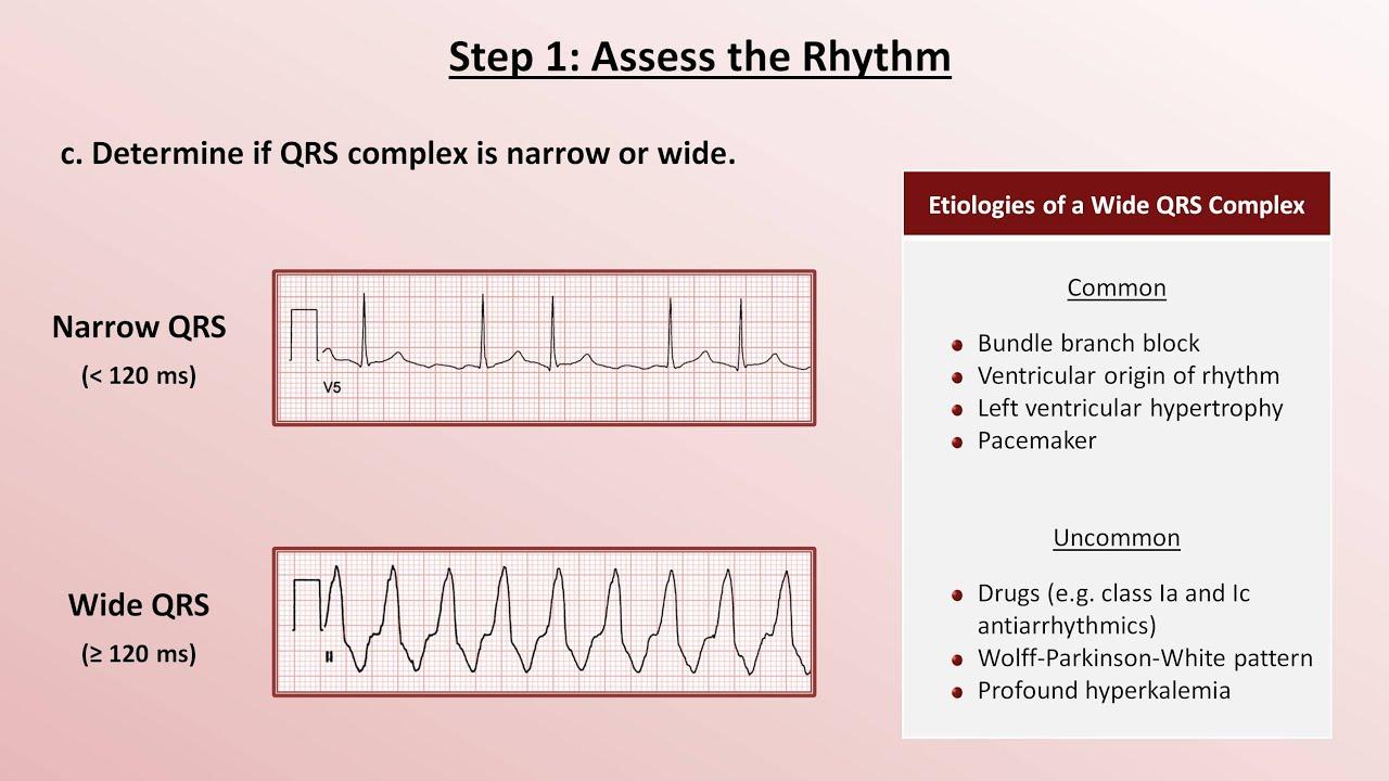 How to Read an EKG foto