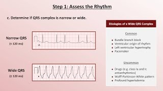 Intro to EKG Interpretation - A Systematic Approach