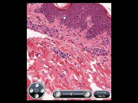 Novak Gynecology 15th Edition Free Download as well Giant Cell arteritis additionally Discoid lupus erythematosus  histology in addition International Airport In Hyderabad India furthermore . on in vasculitis icd 10 code