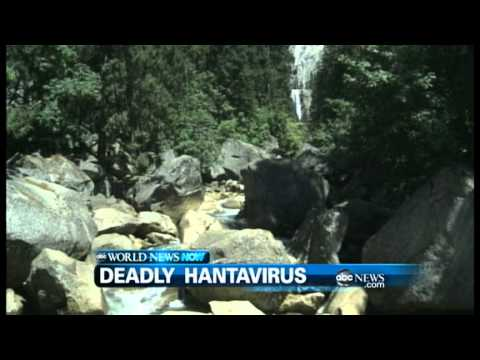 Hantavirus Frequently Asked Questions