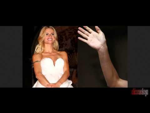 Michelle Hunziker e quella brutta cicatrice sul braccio da sposa