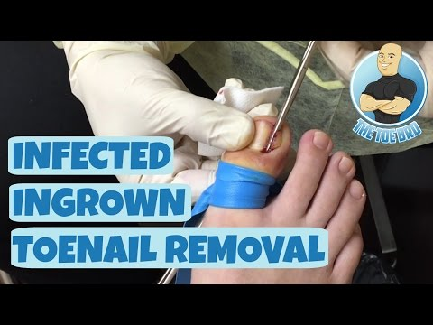 How To Remove An Ingrown Toenail FOREVER!!!