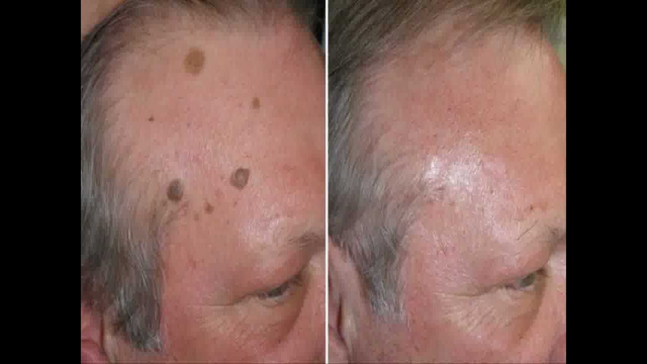 Warts on face, Filiform Warts, Flat Warts Pictures ...