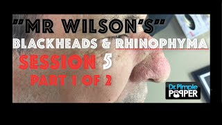 "Session 5, Part 1 of 2: ""Mr Wilson"