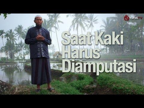 Renungan Islami: Saat Kaki Harus Diamputasi - Ustadz Muhammad Nuzul Zikri, Lc.