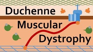Duchenne Muscular Dystrophy and Dystrophin