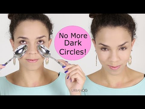 How to Get Rid of Dark Circles and Bags Under Eyes - Puffiness Under Eyes