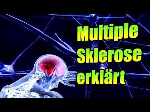 Multiple Sklerose erklärt, Symptome, Verlauf, Diagnose, Behandlung | Medizinkunde #6