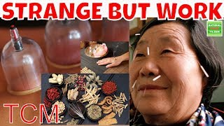 TCM Practices 8 Traditional Chinese Medicine Practices that Seem Strange but Work