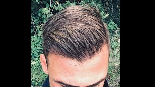 HAIR TRANSPLANT With 4500 Grafts NW4-5, Excellent Result With Fine Hair !