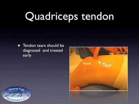 Quadriceps Tendon Quadriceps Tendon Tear