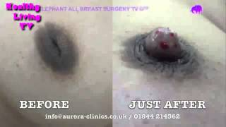 Inverted Nipples Before and After Correction Photos   2013