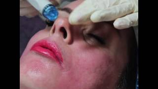 Outline   Hydrafacial   Instagram Vid