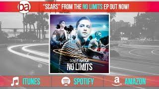 Boyce Avenue - Scars (Audio) on iTunes & Spotify