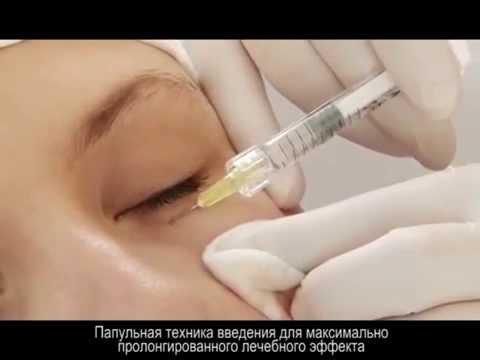 Биоревитализация . Инъекции гиалуроновой кислоты. Biorevitalization.Hyaluronic acid