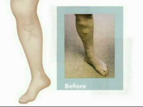 Varicose Veins (Part 2) Signs Symptoms Diagnosis Treatment