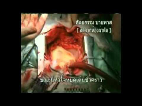 สาเหตุของโรคหัวใจ+Bypass