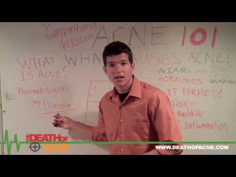 Acne 101: Is A Natural Acne Cure Right For You? - Western vs. Eastern Philosophy -