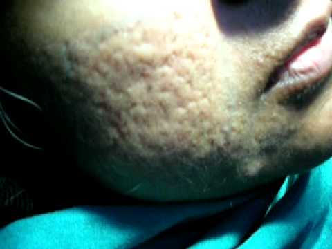 How to Treat Acne Scars with Cosmetic Laser Surgery in Pakistan Part 3