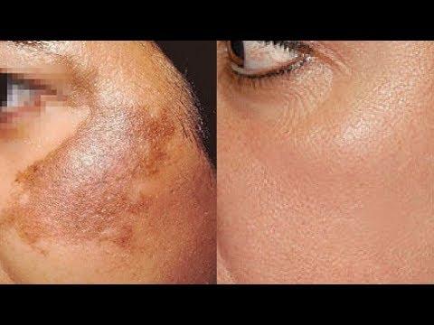 Wie behandeln Hautpigmentierung, schwarze Flecken, Aknenarben leicht zu Hause?