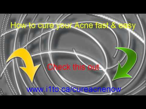 How to get rid of pimples, blemish, scars, back acne, chest acne