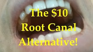 The $10 root canal alternative!