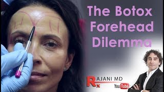 Botox Forehead Dilemma Explained- Dr Rajani