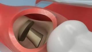Wisdom Teeth Extraction UK Dental Clinic আক্কেল দাত