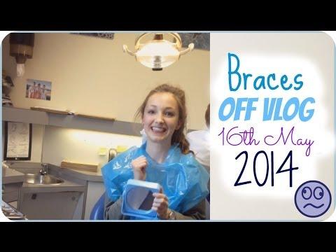 Vlog: Getting my braces off!