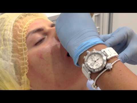 Меди Лайт 3 Инъекционная анестезия перед процедурой увеличения губ